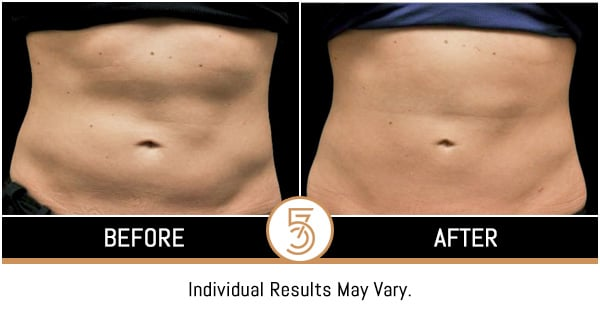 Coolsculpting in NYC Before and After Photos
